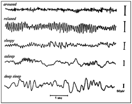 Different frequency spectra of EEG waves are indicative of different mental states. I am using (low) alpha and (high) beta as a read-out for attention.